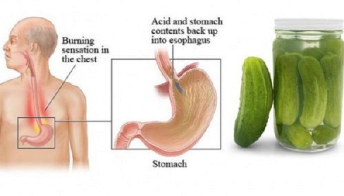Benefits Of Drinking Pickle Juice  Health Benefits of pickle juice
